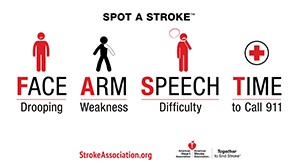 Infographic for the FAST acronym for recognizing a stroke.